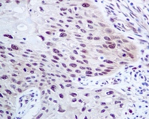 Immunohistochemistry (Formalin/PFA-fixed paraffin-embedded sections) - Anti-CMT2 antibody [EPR9584] (ab150363)