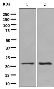 Western blot - Anti-Proteasome 20S beta 6 antibody [EPR9685] (ab150366)