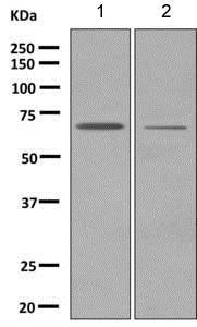 Western blot - Anti-LRRC15 antibody [EPR8188(2)] (ab150376)
