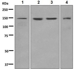 Western blot - Anti-LAMB3 antibody [EPR7525] (ab150385)