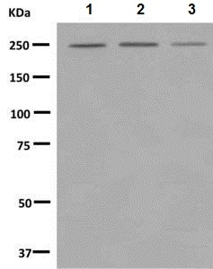 Western blot - Anti-Myosin VIIa/MYO7A antibody [EPR7497] (ab150386)
