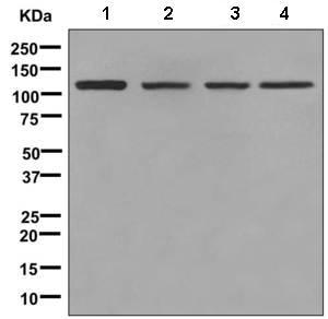 Western blot - Anti-KDS antibody [EPR4947(2)] (ab150388)