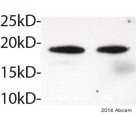 Western blot - Anti-HSPB7 antibody [EPR10106(B)] (ab150390)
