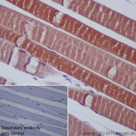 Immunohistochemistry (Formalin/PFA-fixed paraffin-embedded sections) - Anti-HSPB7 antibody [EPR10106(B)] (ab150390)