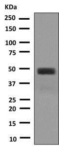 Western blot - Anti-Pax2 antibody [EPR8586] (ab150391)