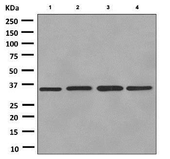 Western blot - Anti-Kallikrein 8/KLK8 antibody [EPR5752(2)] (ab150395)