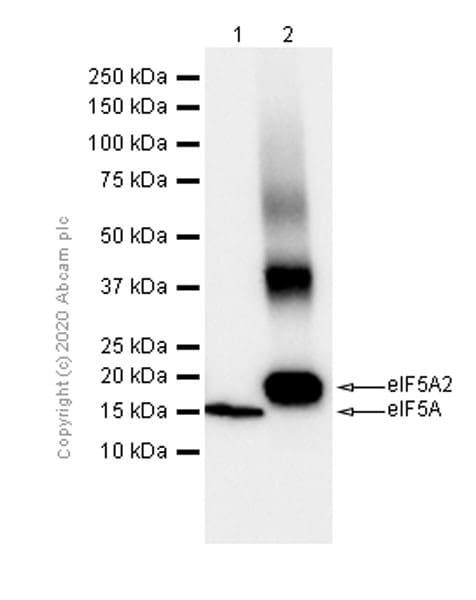 Western blot - Anti-eIF5A2 + eIF5A antibody [EPR7411-105] (ab150403)