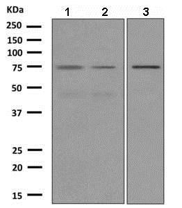 Western blot - Anti-RHOBTB1 antibody [EPR8990] (ab150408)