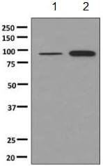 Western blot - Anti-PDXDC1 antibody [EPR10169(B)] (ab150418)