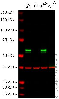 Western blot - Anti-TRK fused gene antibody [EPR8765(2)(B)] (ab150428)