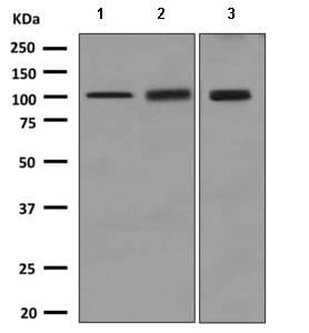 Western blot - Anti-SERCA2 ATPase antibody [EPR9392] (ab150435)