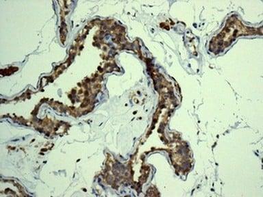 Immunohistochemistry (Formalin/PFA-fixed paraffin-embedded sections) - Anti-eIF5A2 antibody [EPR7412-50] (ab150439)