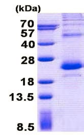 SDS-PAGE - Recombinant Human Tbx1 protein (denatured) (ab150472)