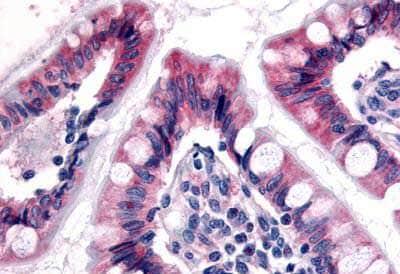 Immunohistochemistry (Formalin/PFA-fixed paraffin-embedded sections) - Anti-Estrogen Related Receptor gamma antibody - N-terminal (ab150539)