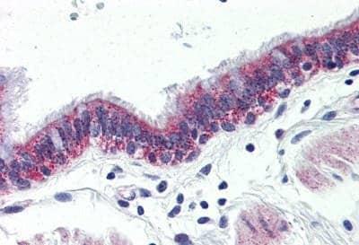 Immunohistochemistry (Formalin/PFA-fixed paraffin-embedded sections) - Anti-GPCR GPR126 antibody (ab150562)