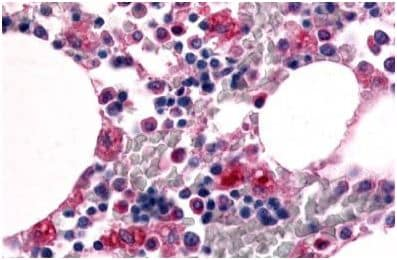 Immunohistochemistry (Formalin/PFA-fixed paraffin-embedded sections) - Anti-EMR1/ADGRE1 antibody (ab150580)