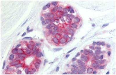 Immunohistochemistry (Formalin/PFA-fixed paraffin-embedded sections) - Anti-Wnt6 antibody (ab150588)