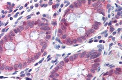Immunohistochemistry (Formalin/PFA-fixed paraffin-embedded sections) - Anti-TMPRSS4 antibody (ab150595)