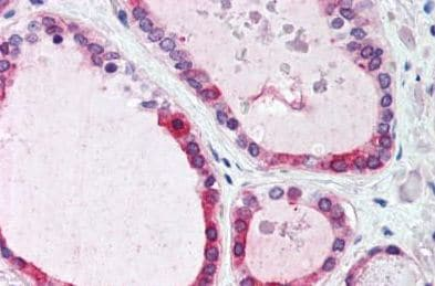 Immunohistochemistry (Formalin/PFA-fixed paraffin-embedded sections) - Anti-Wnt4 antibody (ab150596)