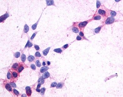 Immunocytochemistry - Anti-CRTH2 antibody (ab150632)