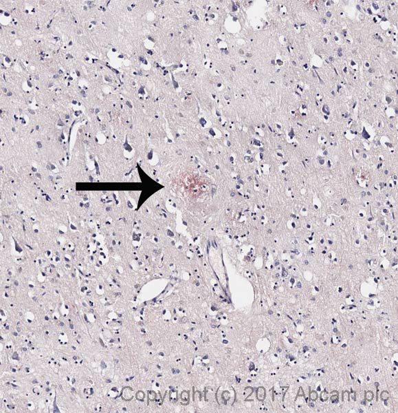 ab150663 - Congo Red Stain Kit (Amyloid Stain)