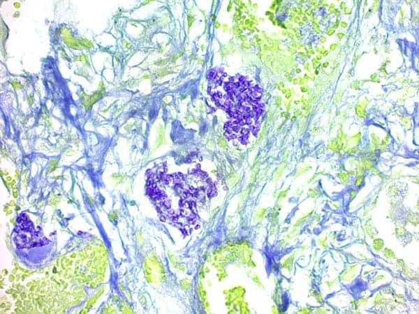 ab150682 - Pneumocystis Stain Kit (Microorganism Stain)