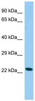 Western blot - Anti-Cysteine Dioxygenase CDO1 antibody (ab150705)