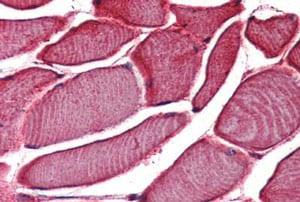 Immunohistochemistry (Formalin/PFA-fixed paraffin-embedded sections) - Anti-TRPV2 antibody (ab150738)