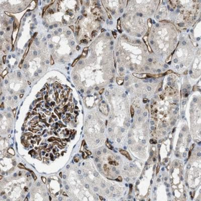 Immunohistochemistry (Formalin/PFA-fixed paraffin-embedded sections) - Anti-PGT antibody (ab150788)