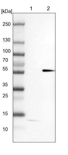 Western blot - Anti-MKS1 antibody (ab150807)