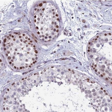 Immunohistochemistry (Formalin/PFA-fixed paraffin-embedded sections) - Anti-RGS17 / RGSZ2 antibody (ab150814)