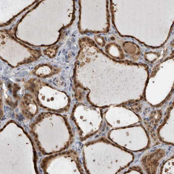Immunohistochemistry (Formalin/PFA-fixed paraffin-embedded sections) - Anti-USH1G antibody (ab150820)