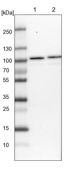 Western blot - Anti-RBM28 antibody (ab150822)