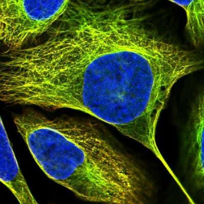 Immunocytochemistry/ Immunofluorescence - Anti-ASRGL1 antibody (ab150832)