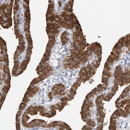 Immunohistochemistry (Formalin/PFA-fixed paraffin-embedded sections) - Anti-ASRGL1 antibody (ab150832)