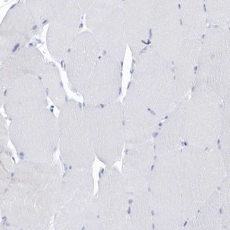 Immunohistochemistry (Formalin/PFA-fixed paraffin-embedded sections) - Anti-GLEPP1/PTPRO antibody (ab150834)