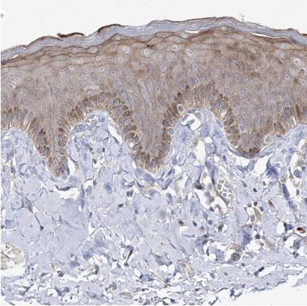 Immunohistochemistry (Formalin/PFA-fixed paraffin-embedded sections) - Anti-RICS antibody (ab150847)