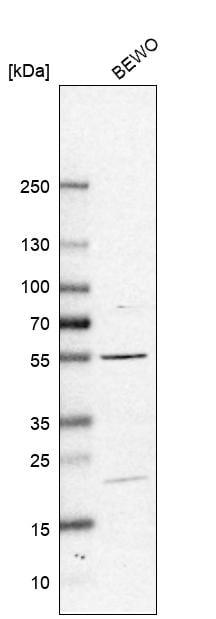 Western blot - Anti-C12orf41 antibody (ab150848)
