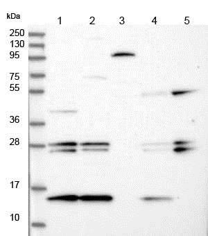 Western blot - Anti-MNF1 antibody (ab150849)