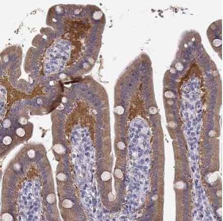 Immunohistochemistry (Formalin/PFA-fixed paraffin-embedded sections) - Anti-CREB3L3 antibody (ab150865)