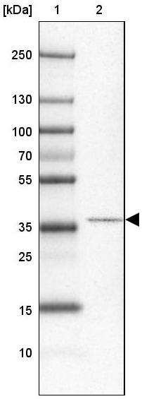 Western blot - Anti-CCDC113 antibody (ab150866)