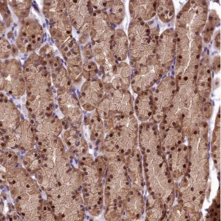 Immunohistochemistry (Formalin/PFA-fixed paraffin-embedded sections) - Anti-SBNO2 antibody (ab150880)
