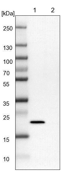 Western blot - Anti-NHP2 antibody (ab150918)