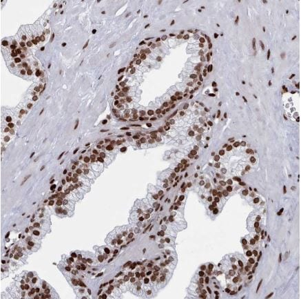 Immunohistochemistry (Formalin/PFA-fixed paraffin-embedded sections) - Anti-PCDHB11 antibody (ab150924)
