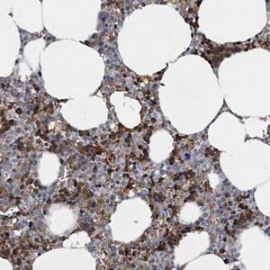 Immunohistochemistry (Formalin/PFA-fixed paraffin-embedded sections) - Anti-SEBOX antibody (ab150935)