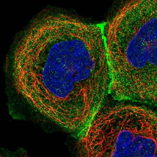 Immunocytochemistry/ Immunofluorescence - Anti-Eros antibody (ab150936)
