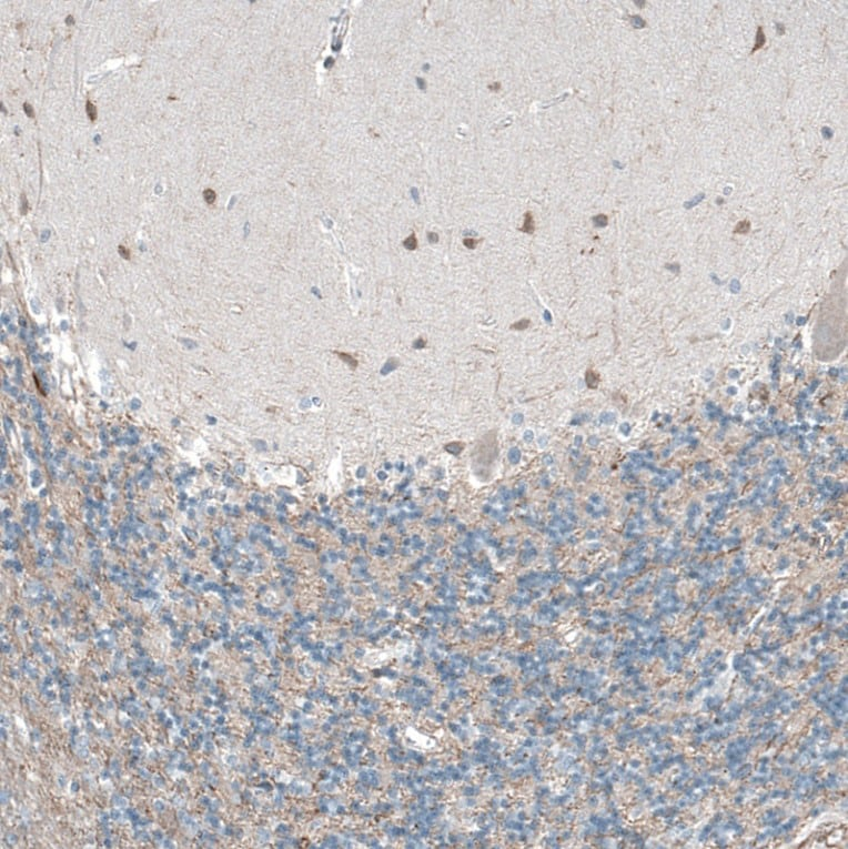Immunohistochemistry (Formalin/PFA-fixed paraffin-embedded sections) - Anti-OCM antibody (ab150947)