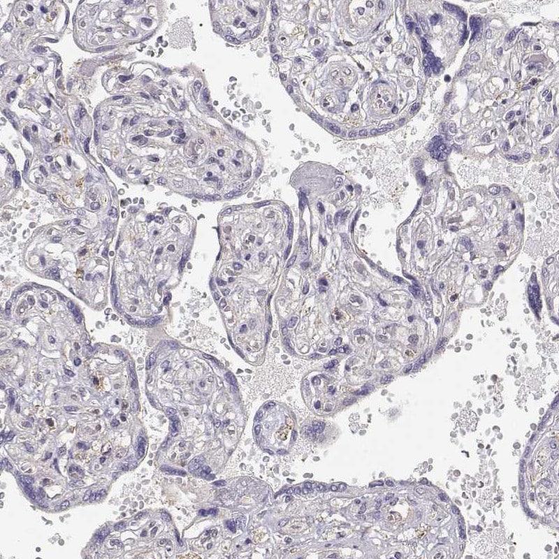 Immunohistochemistry (Formalin/PFA-fixed paraffin-embedded sections) - Anti-DAPL1 antibody (ab150969)