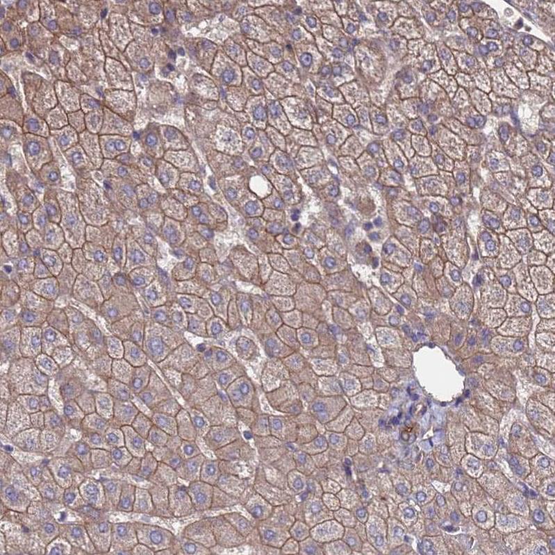 Immunohistochemistry (Formalin/PFA-fixed paraffin-embedded sections) - Anti-NDUFAF6 antibody (ab150975)