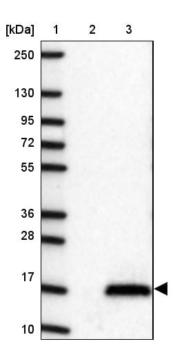 Western blot - Anti-C10orf11 antibody (ab150986)